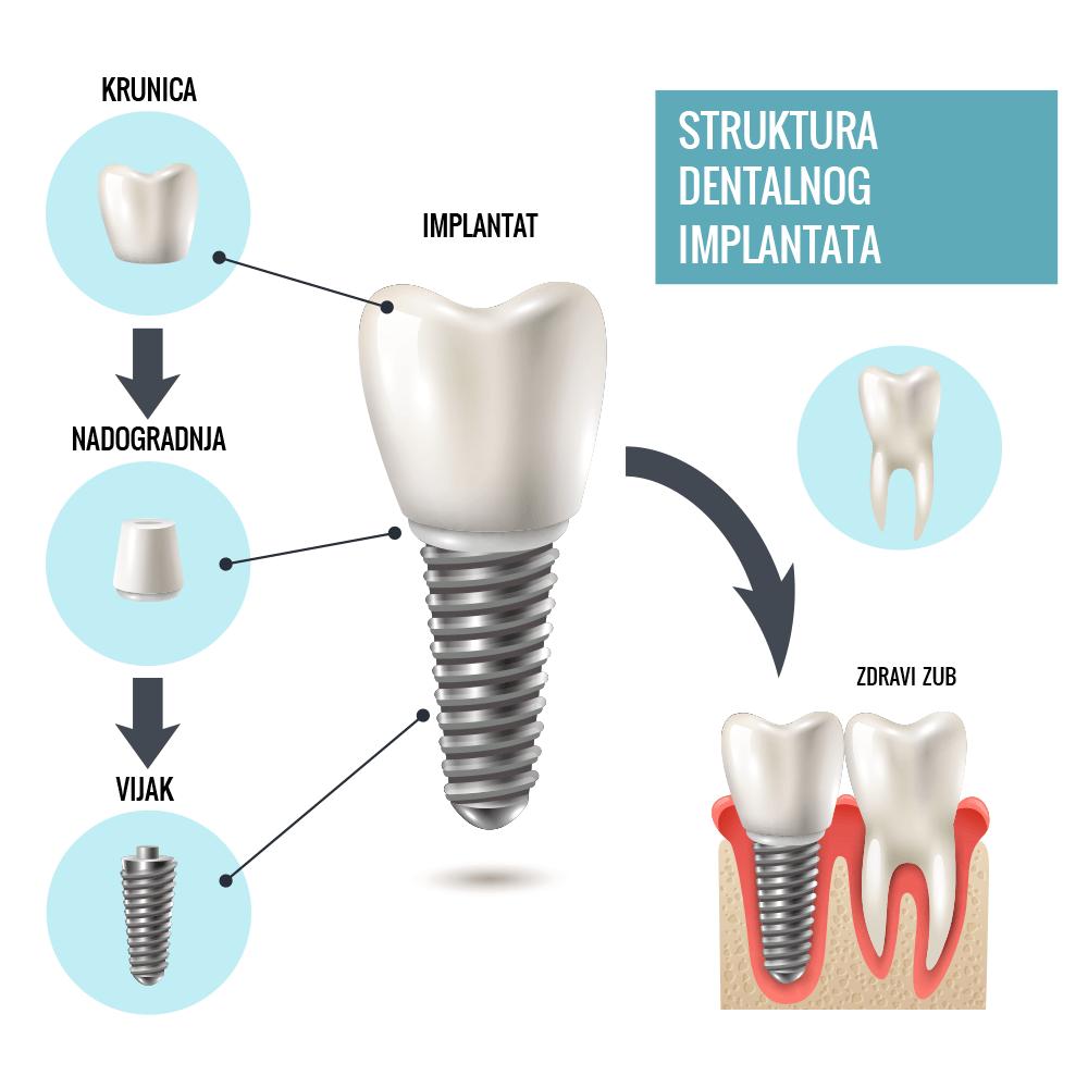 Zubna ordinacija Dentin: građa zubnog implantata