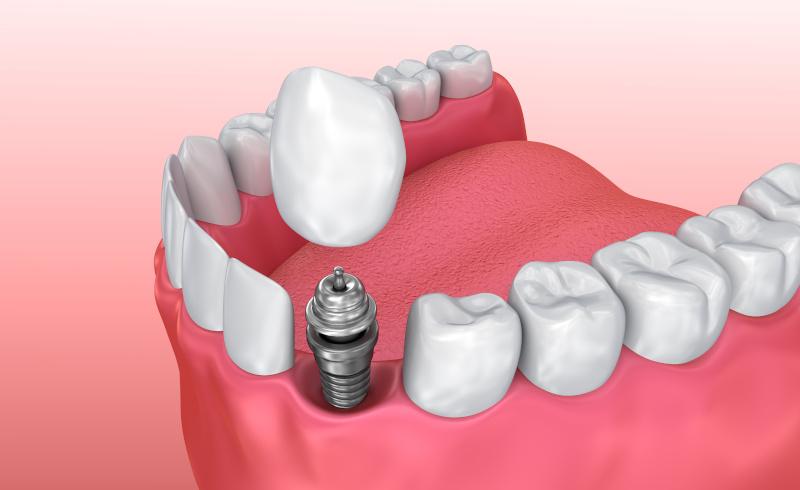 Zubarska ordinacija DentIN, Zagreb: prikaz ugradnje implantata