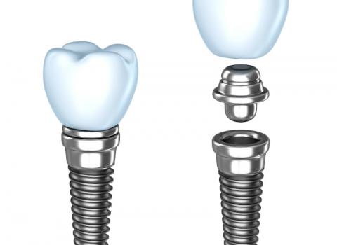 Zubna ordinacija DentIN, Zagreb: građa implantata, grafika
