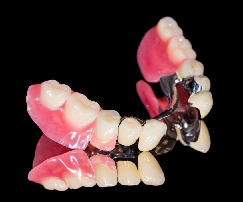 Dentalni centar DentIN Zagreb: Parcijalna zubna proteza