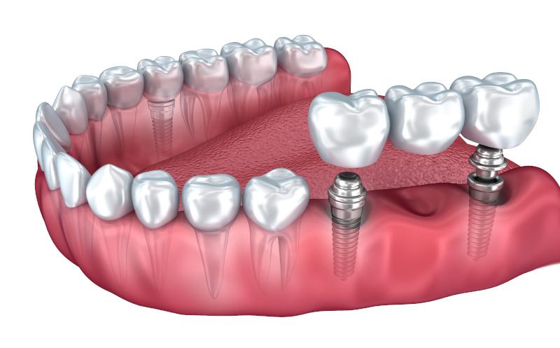 Dentalni centar DentIN, Zagreb: zubni most postavljen na zubne implantate