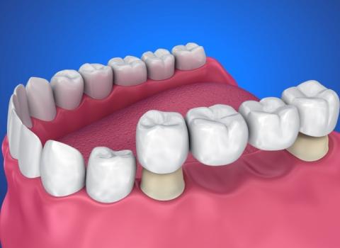 Dentalni centar DentIN, Zagreb: zubni most postavljen na dva zuba