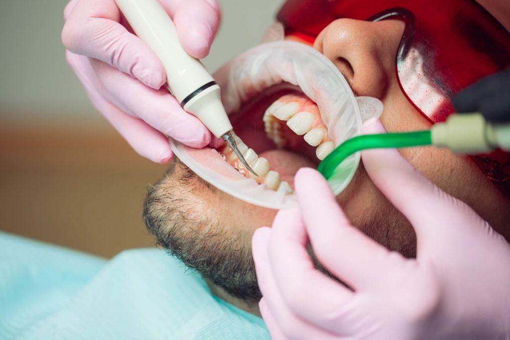 Dentalni centar DentIN, Zagreb, Trešnjevka: čišćenje zubnog kamenca ultrazvučnim čistačem.