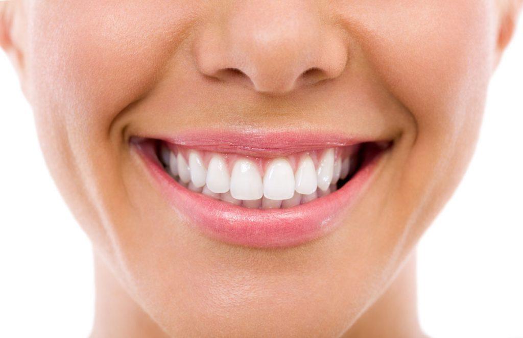 Dentalni centar DentIN, Zagreb: osmijeh djevojke, vrlo bijeli zubi, izbijeljeni.