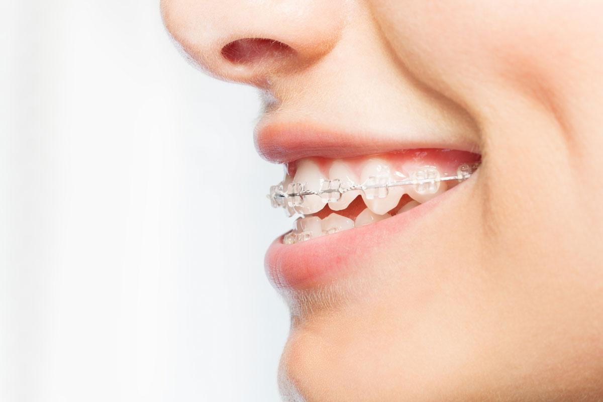 Dentalni centar DentIN, Zagreb, Trešnjevka: djevojka, profil, nosi fiksni estetski zubni aparatić.