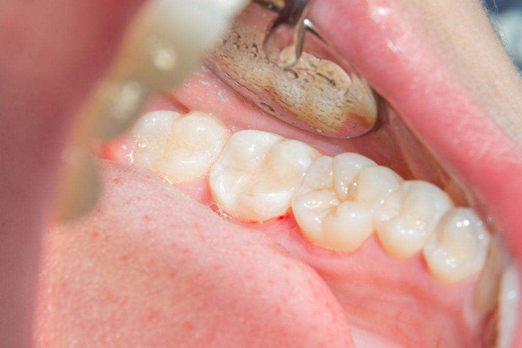 Dentalni centar DentIN, Zagreb, Trešnjevka: kompozitni ispuni koji se uopće ne razlikuju od prirodnih zubi.