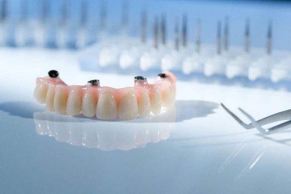 Dentalni centar DentIN, Zagreb: All-on-4 most na implantatima izrađen od akrilata.