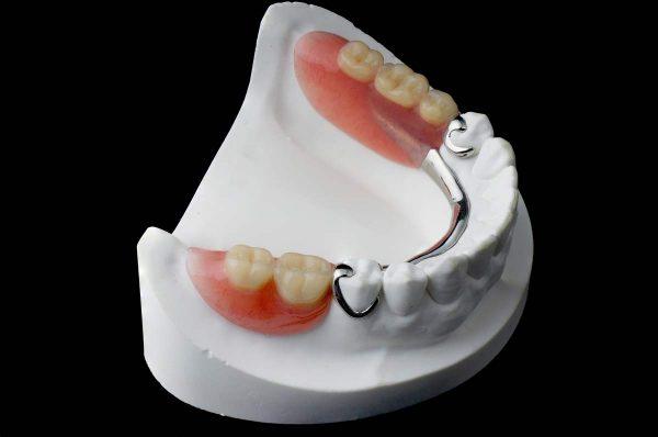 Dentalni centar DentIN, Zagreb: djelomična ili parcijalna zubna proteza.