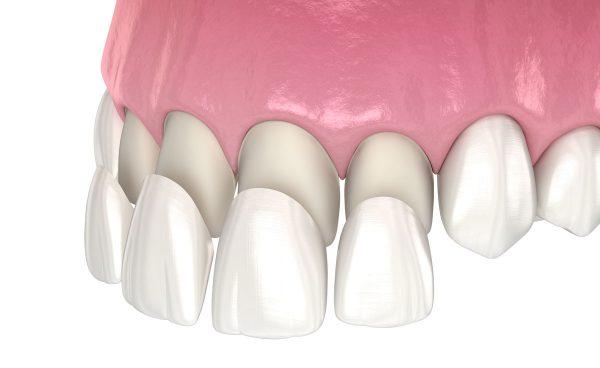 Dentalni centar DentIN, Zagreb: grafički prikaz postavljanja keramičkih ljuskica za zube.