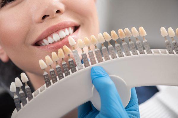 Dentalni centar DentIN, Zagreb: određivanje boje keramičkih ljuskica na temelju postojećih zubi.