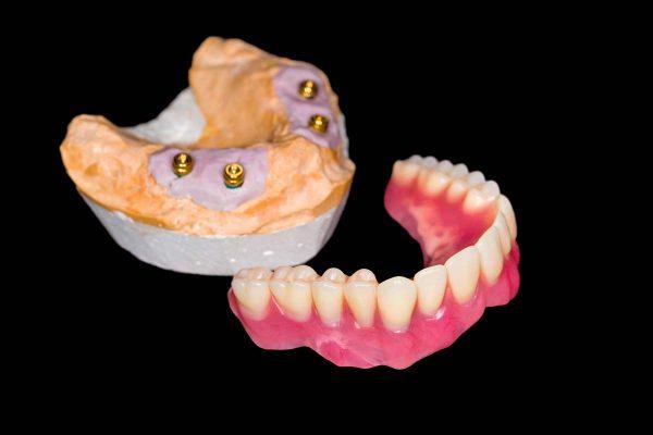 Dentalni centar DentIN, Zagreb: gipsani model čeljusti pacijenta na kojem se nalaze implantati s lokatorima, a služi za planiranje proteze na lokatorima.