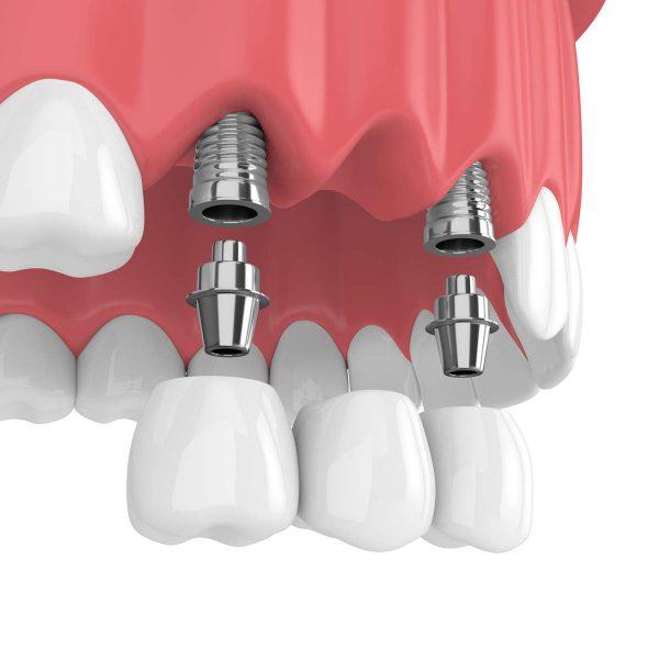 Dentalni centar DentIN, Zagreb: zubni most na zubnim implantatima, grafika.