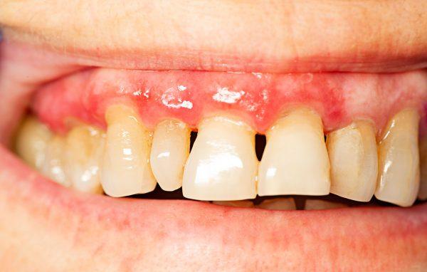Dentalni centar DentIN, Zagreb, Trešnjevka: razvoj parodontitisa, blijedo-ružičasto zubno meso, povlačenje zubnog mesa sa zubi, crvene mrlje na zubnom mesu kao znakovi razvoja parodontitisa.