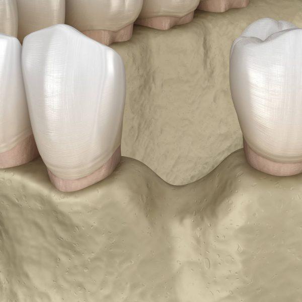 Dentalni centar DentIN, Zagreb: prikaz gubitka čeljusne kosti na mjestu izgubljenog zuba.