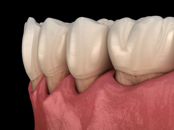 Dentalni centar DentIN, Zagreb, Trešnjevka: razvoj parodontitisa, grafički prikaz odvajanja zubnog mesa od zubi.