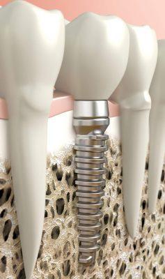 Dentalni centar DentIN, Zagreb: grafički prikaz oseointegracije, tj. procesa srastanja zubnog implantata s čeljusnom kosti.
