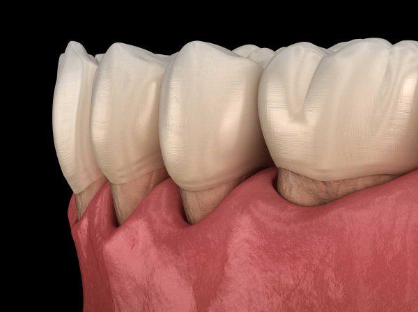 Dentalni centar DentIN, Zagreb: prikaz simptoma oboljenja desni, parodontitisa.