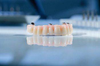 Dentalni centar DentIN, Zagreb: privremeni protetski rad, ili provizorij, kakav pacijenti nose tijekom oporavka.