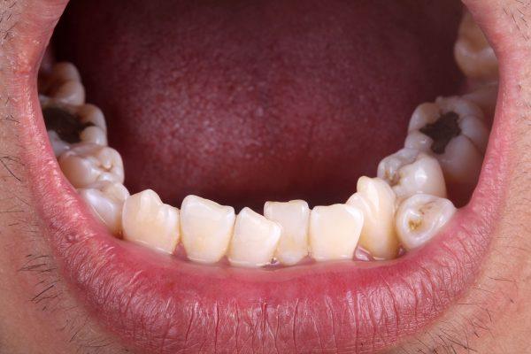 Dentalni centar DentIN, Zagreb, Trešnjevka: fotografija donje čeljusti sa ortodontskom anomalijom zbijenih zubi.