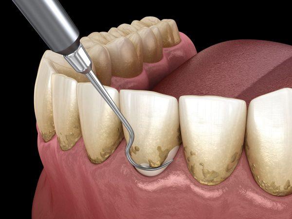 Dentalni centar DentIN, Zagreb, Trešnjevka: struganje zubnog kamenca, grafički prikaz.