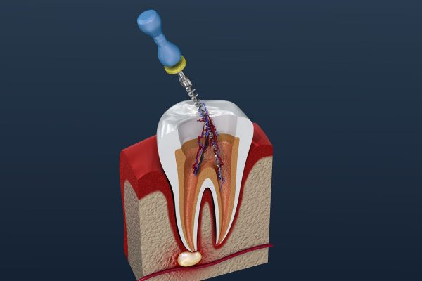 Dentalni centar DentIN, Zagreb, Trešnjevka: grafički prikaz čišćenje zubnog korijena posebnim svrdlom.